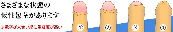 仮性包茎の重症度1~4